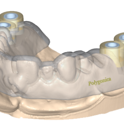 Using Polygonica for dental modelling blog image