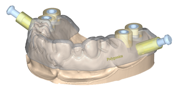Using Polygonica for dental modelling preview image